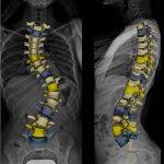 Ortopedie - Loredana Rascol - Februarie 2017